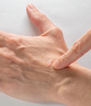 Warts Treatment in Rajahmundry, Warts Treatment in Tirupathi