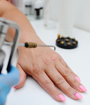 Warts Treatment in Nellore, Warts Removal Treatment in Vizag