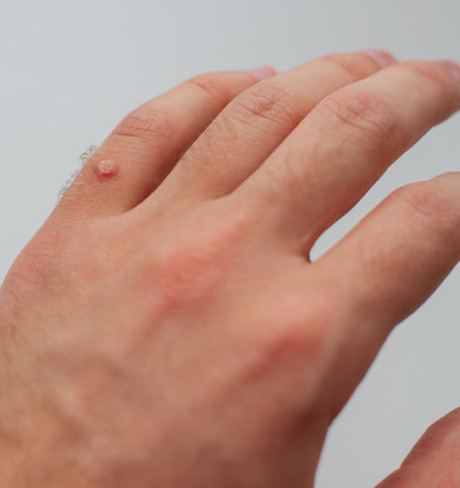 Warts Treatment in Bhimavaram, Warts Treatment in Hyderabad, Warts Treatment in Karimnagar, Warts Treatment in Chennai