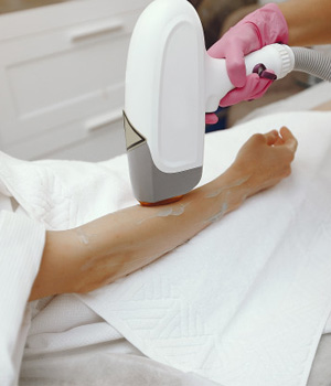 Laser Hair Removal Treatment in Chennai, Laser Hair Removal Treatment in Bangalore, Laser Hair Removal in Vizag