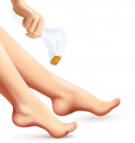 Laser Hair Removal Treatment in Hyderabad, Laser Hair Removal Treatment in Bhimavaram