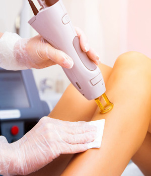 Unwanted Hair Removal in Chennai Unwanted Hair Removal in Bangalore