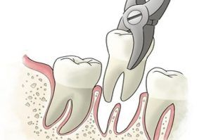 tooth-extraction-300x199.jpg