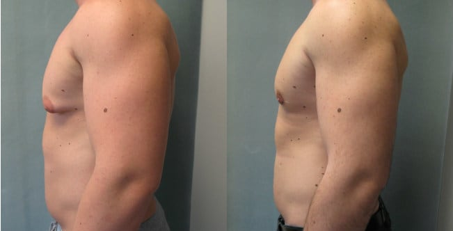 Male Breast Reduction in Delhi