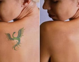 tattoo removal in rohini
