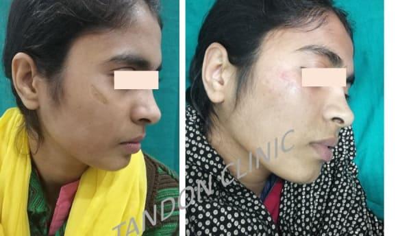 scar removal in Punjabi Bagh