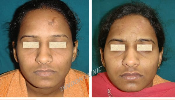 scar removal in nangloi