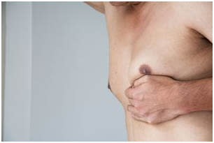 male breast reduction surgery in pitampura