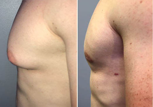 Male Breast Reduction surgery in Delhi