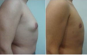 gynecomastia surgery in Delhi