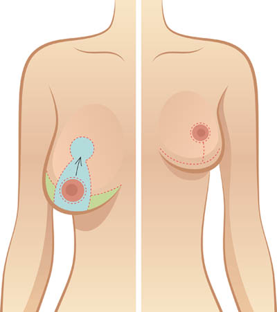 Breast Reduction Surgery in Delhi