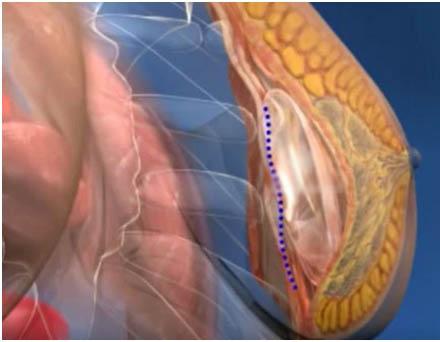 breast-enlargement-in-delhi