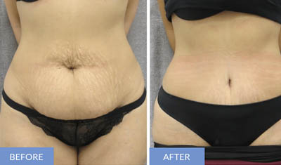 abdominoplasty in Delhi