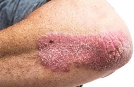 Skin Cancer Treatment in Delhi