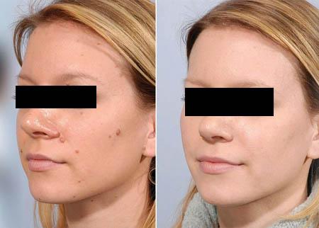 mole removal in Rohini