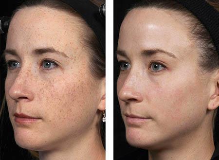 laser skin resurfacing in Rohini