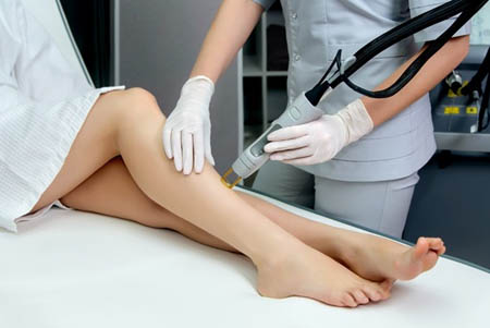 laser hair removal in Rohini