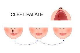 cleft lip treatment in Delhi