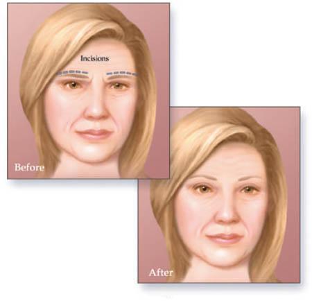 brow lift surgery in Delhi