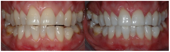 tooth whitening in Rohini
