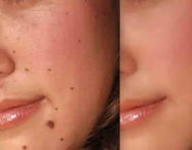 mole removal treatment in Ashok Vihar