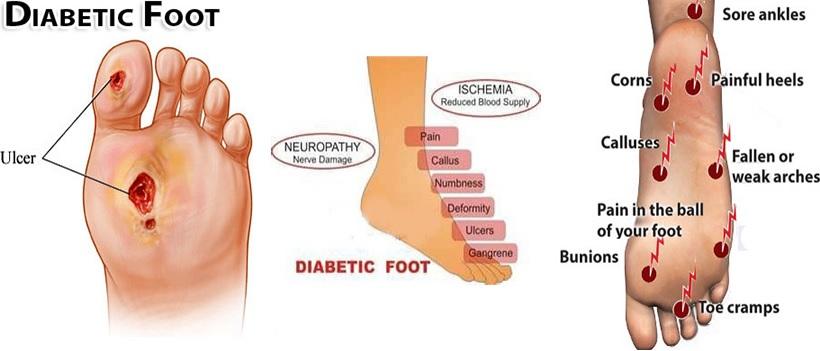 diabetic foot treatment in Rohini