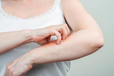 5 Langkah Mudah Atasi Kulit Gatal Akibat Diabetes