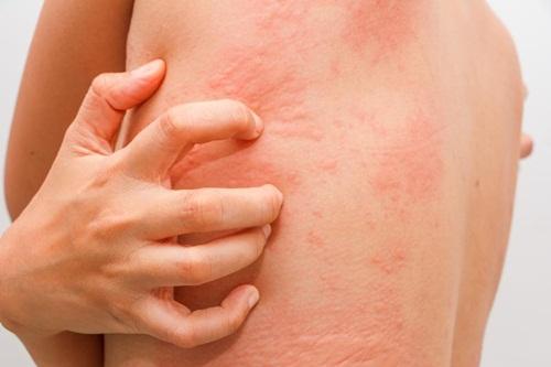 Obat Alergi Dingin Di Apotik