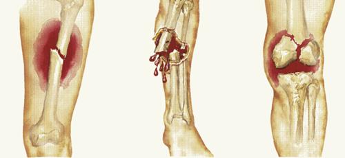 Obat Patah Tulang Di Apotik