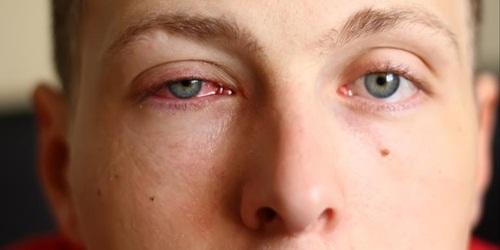 Obat Mata Kering Di Apotik