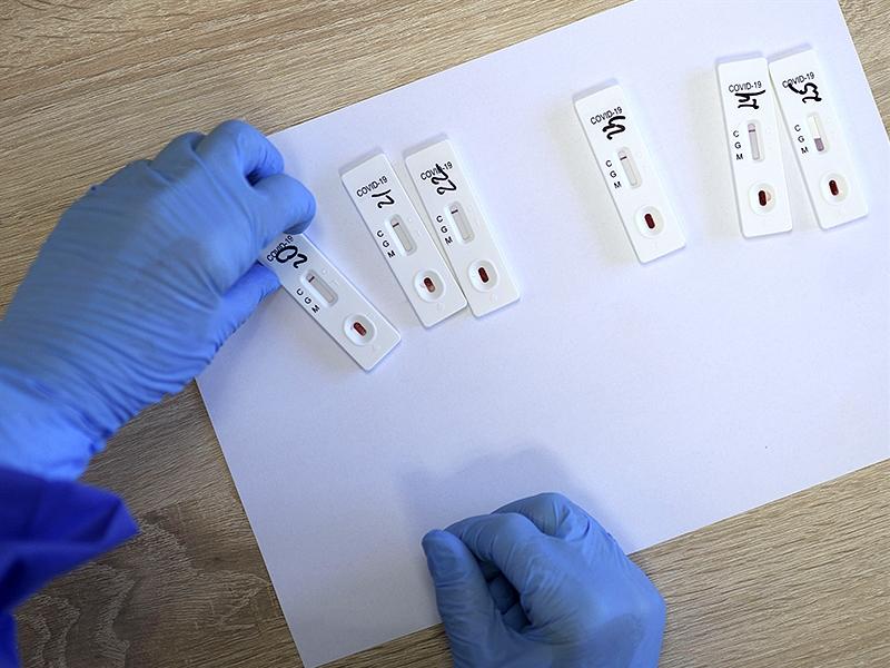 Підмосков'ї закупило 30 тисяч тестів для експрес-діагностики коронавіруса