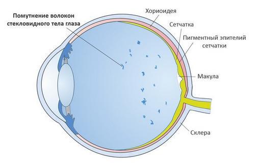 Плями перед очима – причини, види плям і лікування