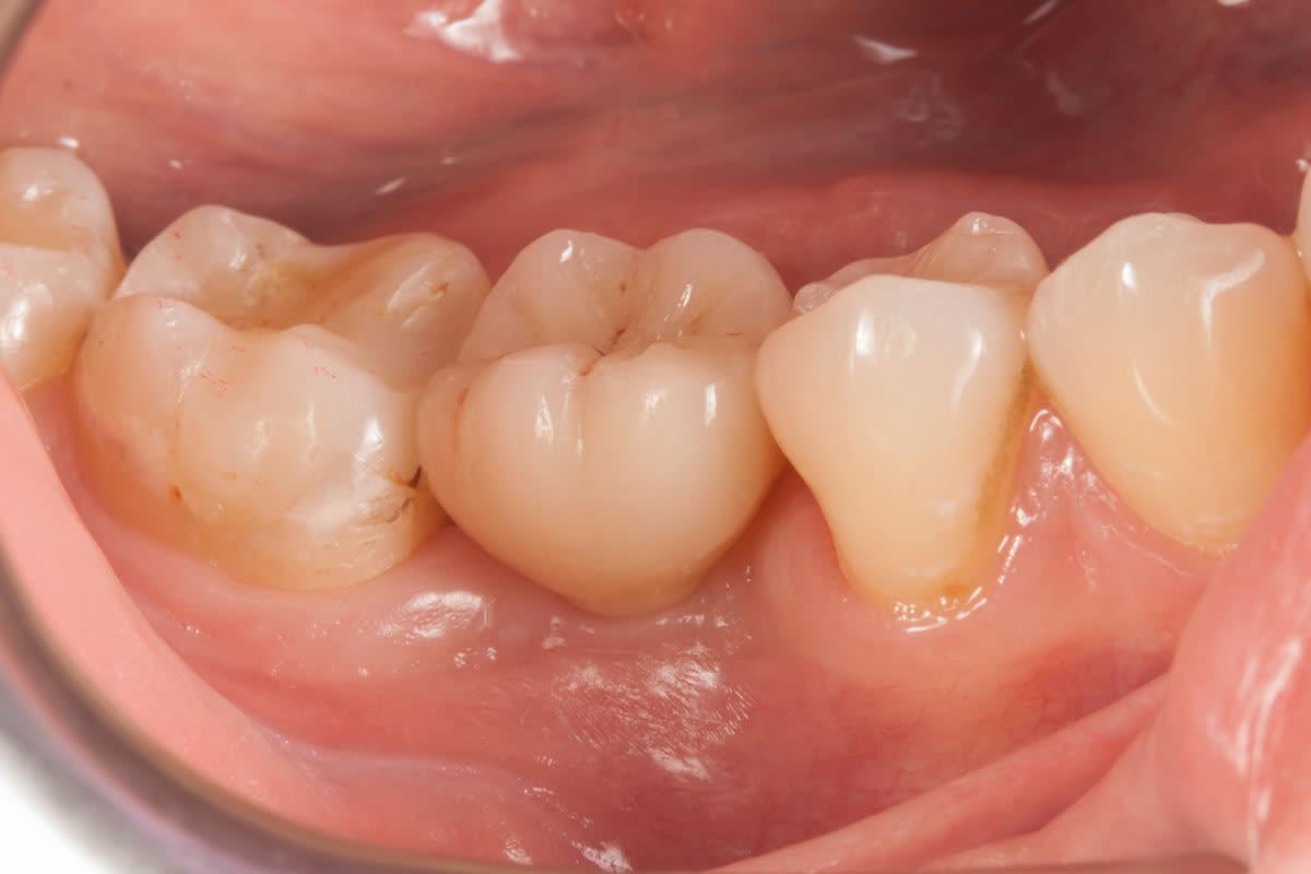Implantace keremického zubního implantátu axis biodental sbezkovovou zubní korunkou