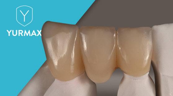 Navracíme úsměv – zubní korunky a můstky