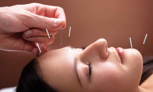 L'acupuncture vous pour soulager