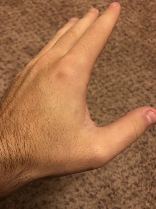 hand with grip