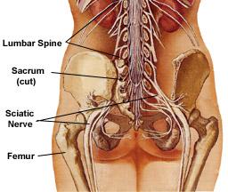 sciatica herbal treatment