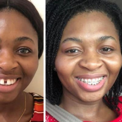 Straighten your smile with braces image