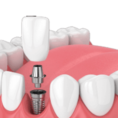 Dental implant special image