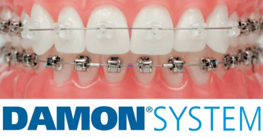High-tech Damon™ System braces available