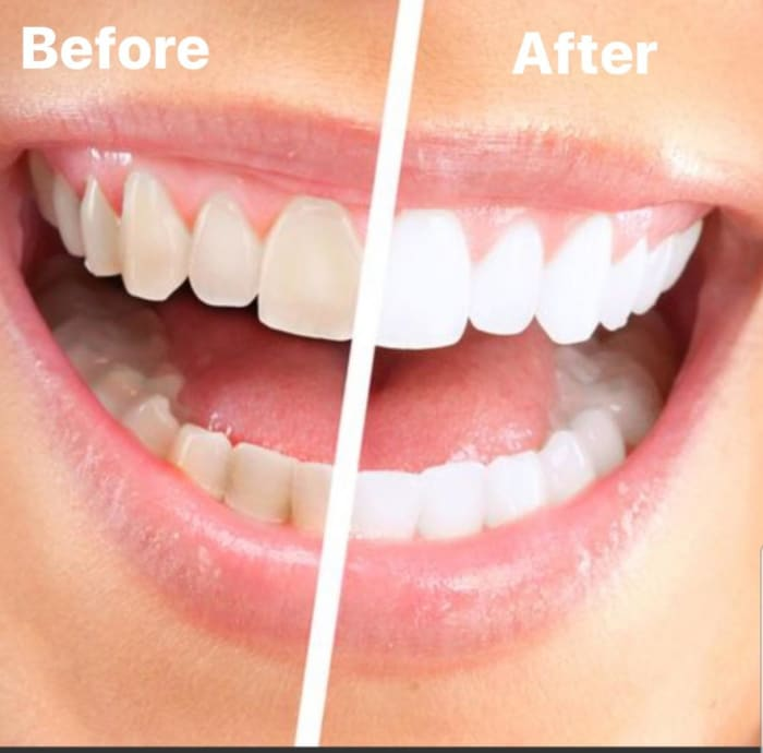 Improve your smile with Spa-Dent teeth whitening