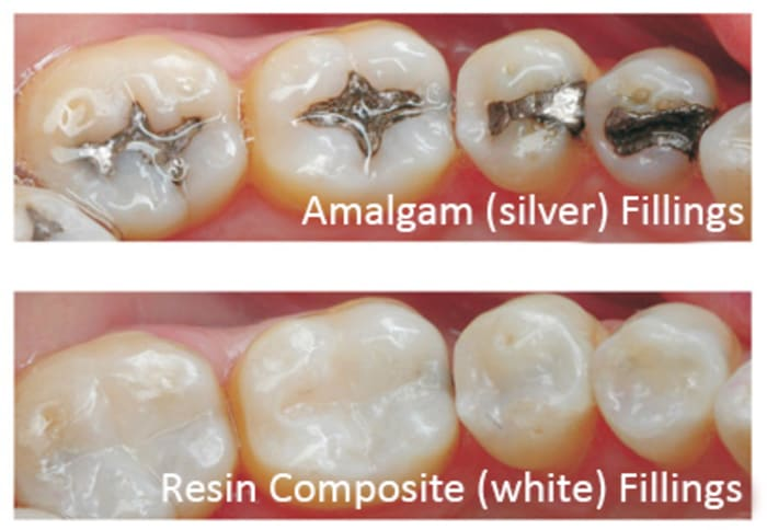 Fillings and root canals
