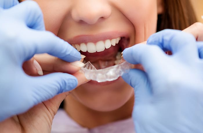 Clear, permanent and traditional metal retainers