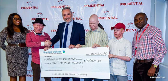 Prudential donates K10,000 to the Zambia National Albinism Initiative