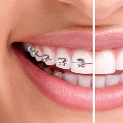 Incognito™ braces image