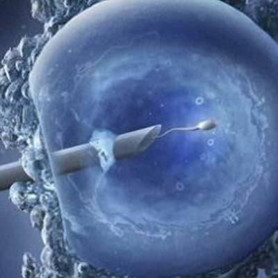 Intra-cytoplasmic Sperm Injection (ICSI) image