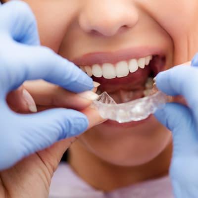 Invisalign® braces image