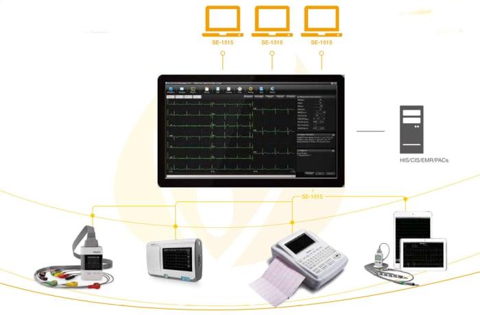 Diagnostic ECG -  SE-1515 Workstation