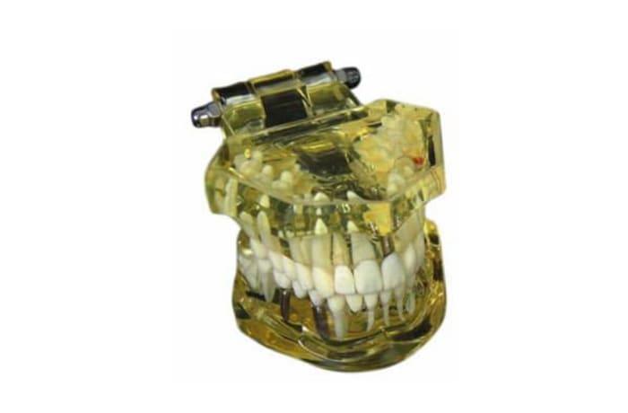 Orthodontic Products - Models - Dental Teeth Implant Model