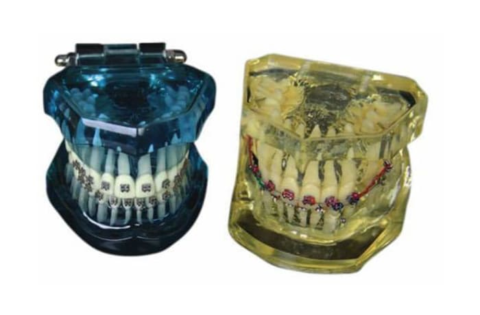 Orthodontic Products - Models - Orthodontic Jaw Model